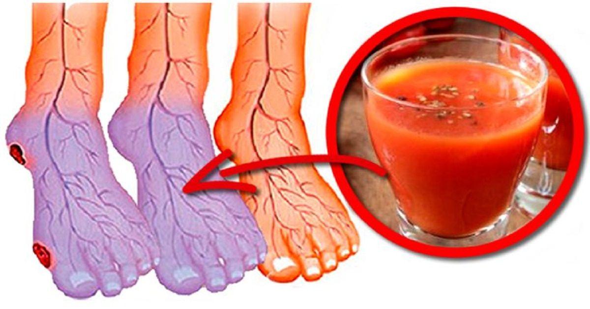 pies hinchados y con hormigueo