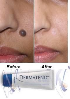 Dermatend Mole Remover Wart Skin Tag Is An All Natural Proprietary Formula That
