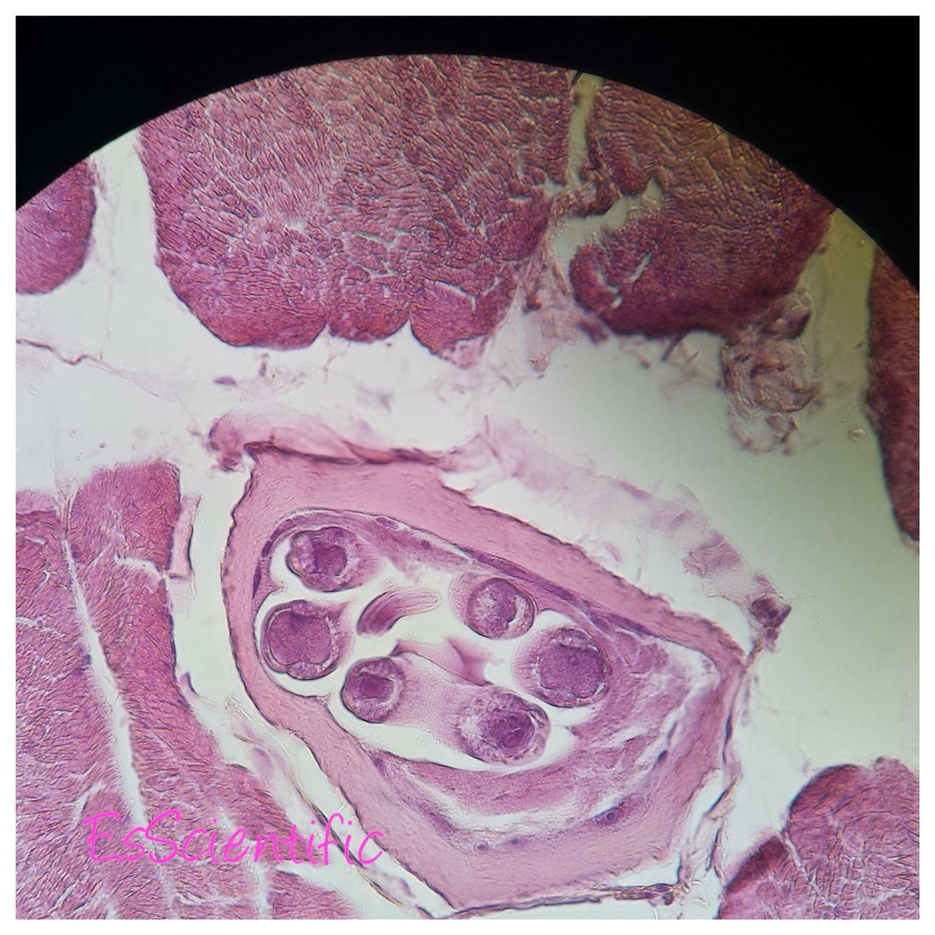 Trichinella Spiralis Labeled