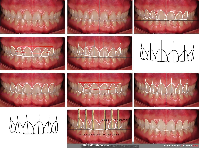 paso a paso d o s diseño odontológico de sonrisa explore dental ideas dsd and more