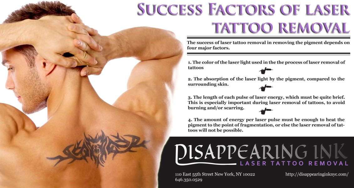 Nervous for you laser tattoo removal? Don't worry. Here
