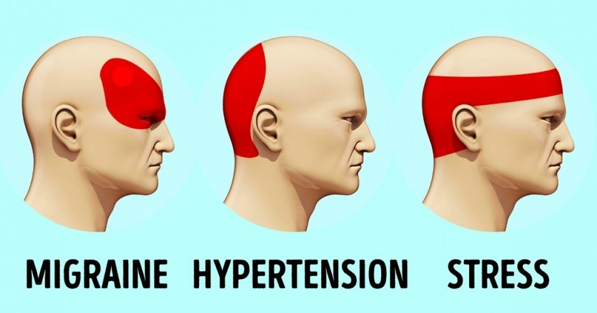 How to get rid of a headache in 5 minutes without pills if this how to get rid of a headache in 5 minutes without pills if this works ccuart Gallery