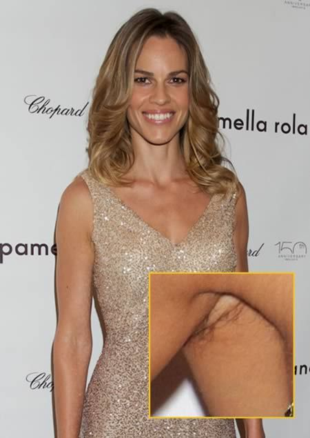 12 Controversial Photos Of Armpit Hair Armpit Hair Hair Pics