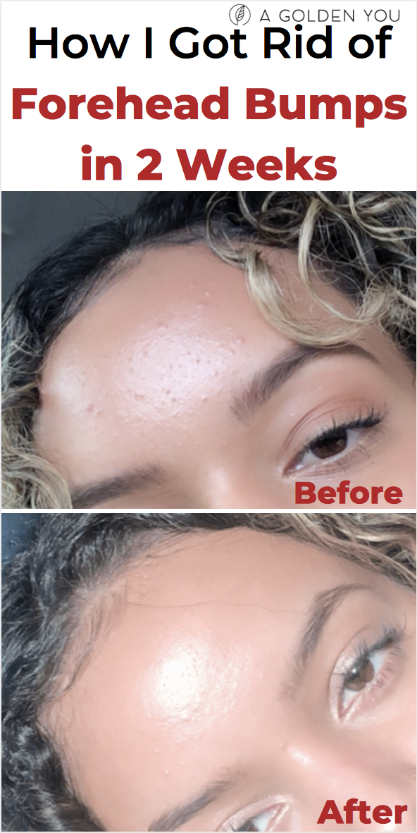 How I Got Rid Of Forehead Bumps In 2 Weeks Acnetreatment Fungalacne Skincare Forehead Bumps Skin Bumps Forehead Acne