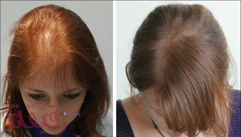 زراعة الشعر للنساء بالصور والتكلفة وتفاصيل العملية الكاملة Hair Transplant Beauty Hacks Hair Care