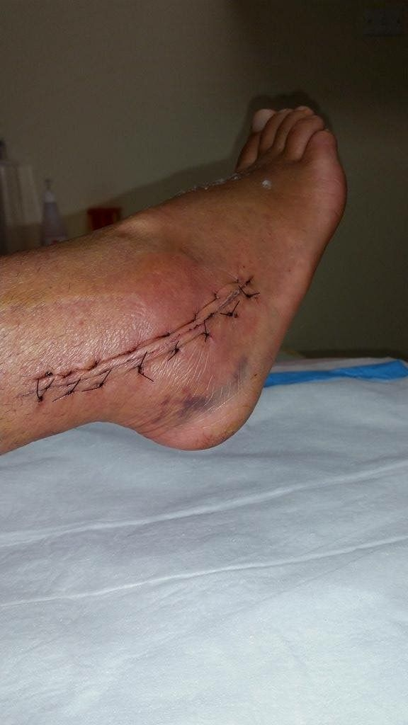 This is 3 weeks after stitches removed and right after cast