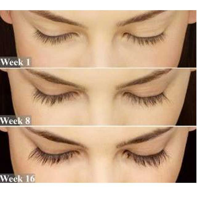 f9adb41efe6 Grow fuller, darker, longer lashes. Latisse is the only FDA-approved  prescription treatment for growing your eyelashes. You'll be able to double your  lash ...