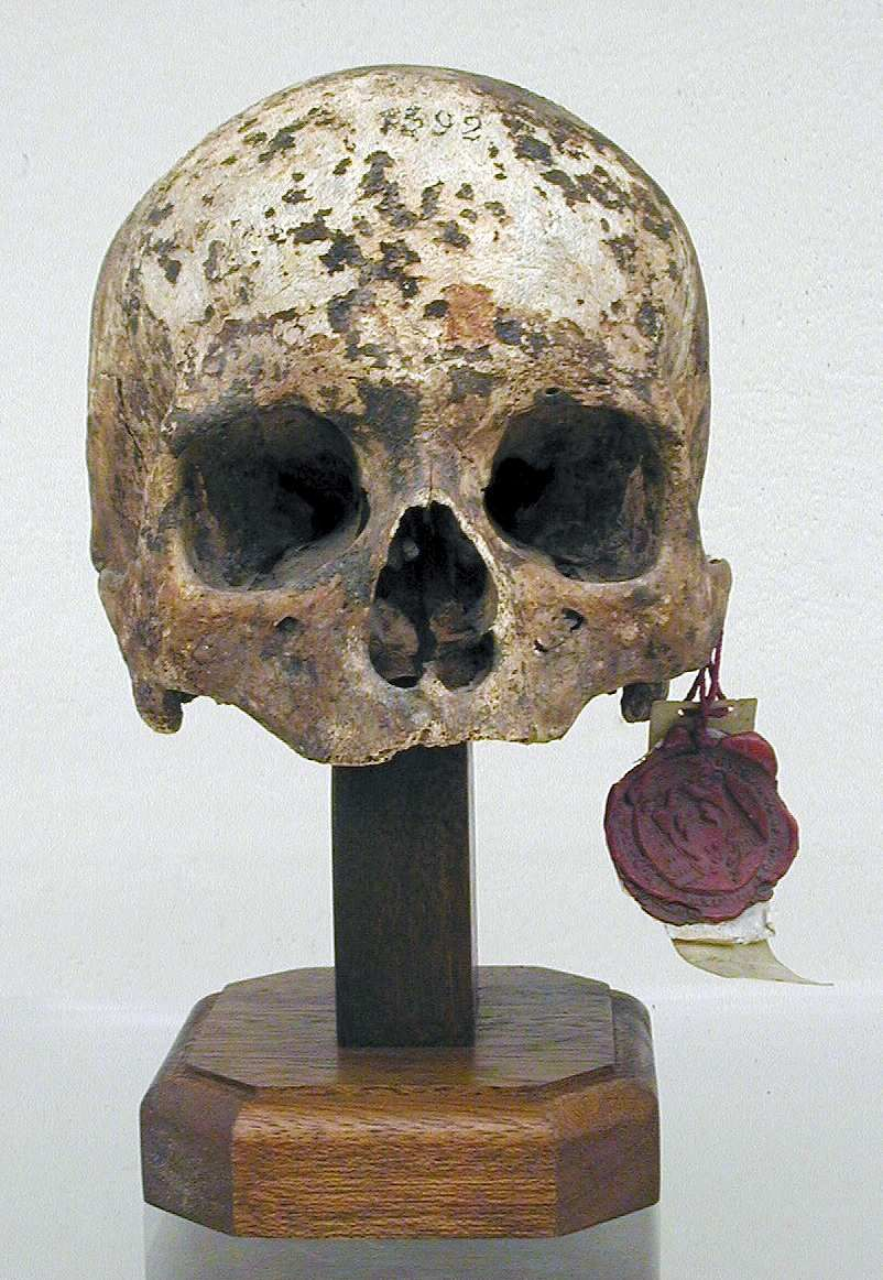 Skull Atalarico, king of the Ostrogoths