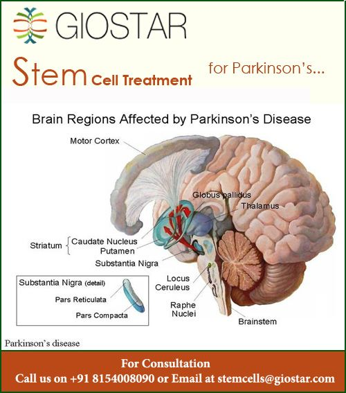 Pin By Stem Cell Therapy On Stem Cell Therapy Stem Cell