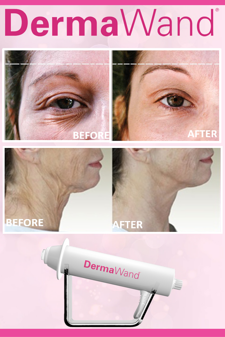 Red Light Therapy · Sagging Skin · Skin Tightening · Dr Oz · Skin Products  · REAL RESULTS! Lift AND Tighten! Design Inspirations