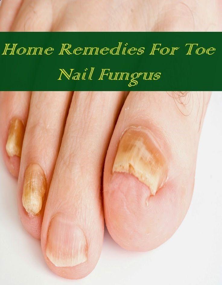 Home Remedies For Toe Nail Fungus | Nail Fungus Articles | Pinterest ...