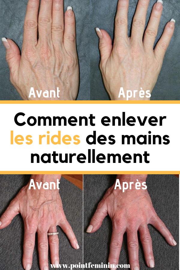 rides des mains