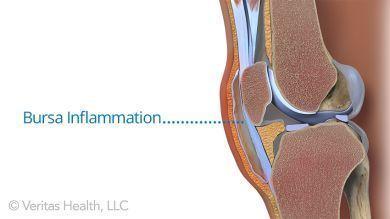 Gelenkerkrankungen: Teufelskralle zur Therapie der Osteoarthritis