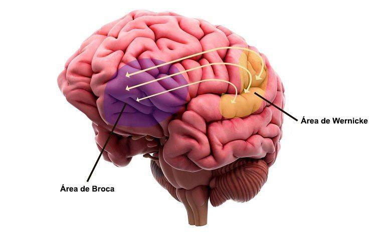 Broca-wernicke | Anatomía y fisiología | Pinterest