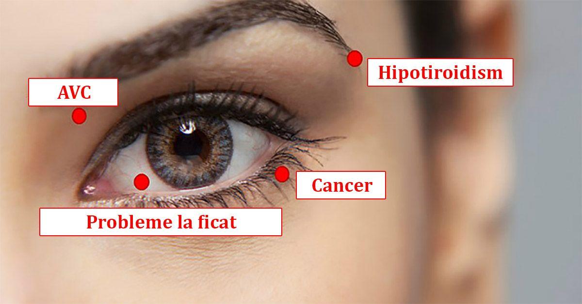 varicoza ochilor