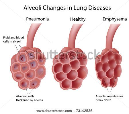 Alveoli In Lung Diseases Proyecto Pinterest Lungs