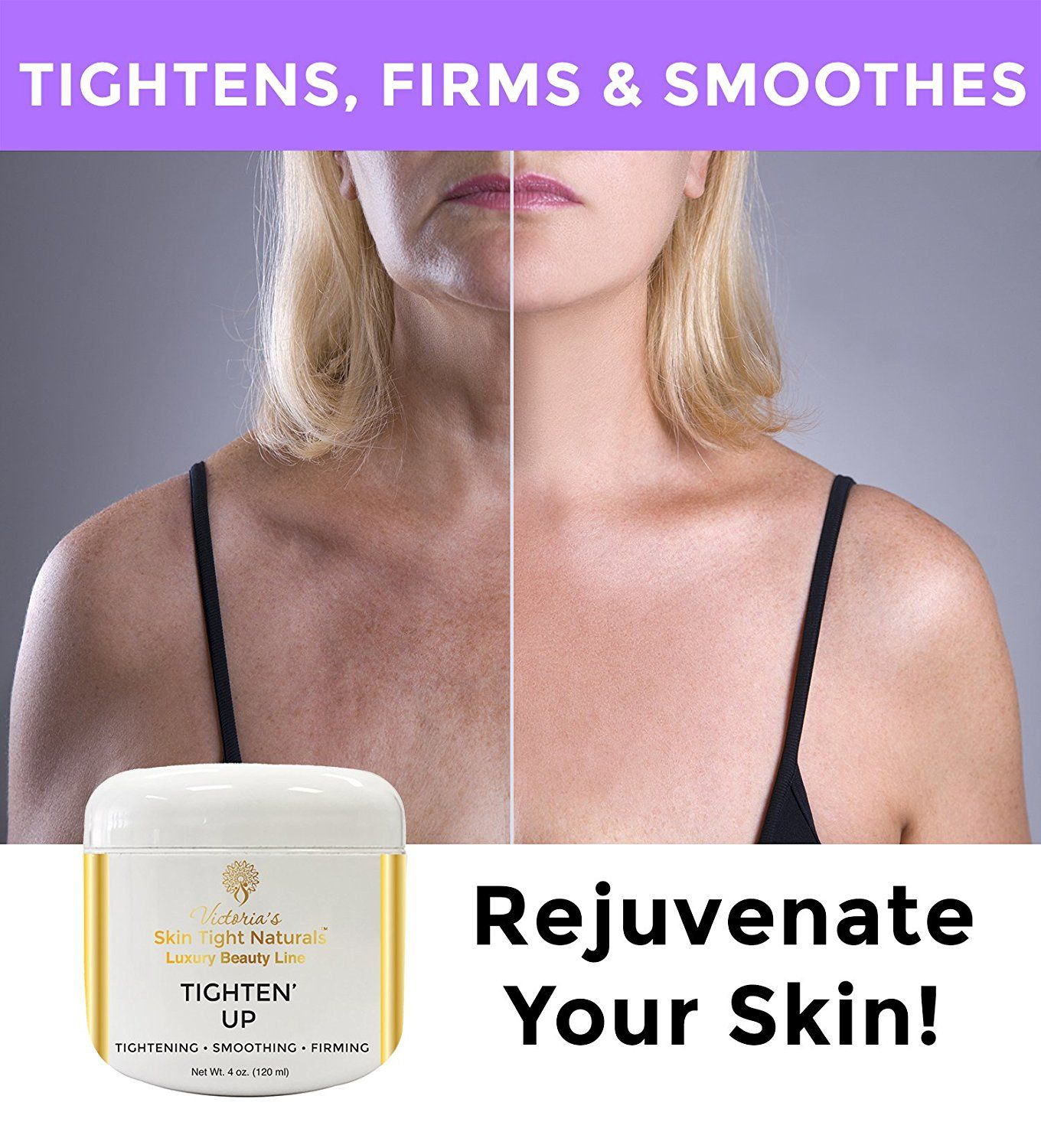 Best Anti Aging Cream To Remove Wrinkles And Tighten Crepey Skin Skin Tight Naturals Crepey Skin Best Anti Aging Creams Skin Tightening