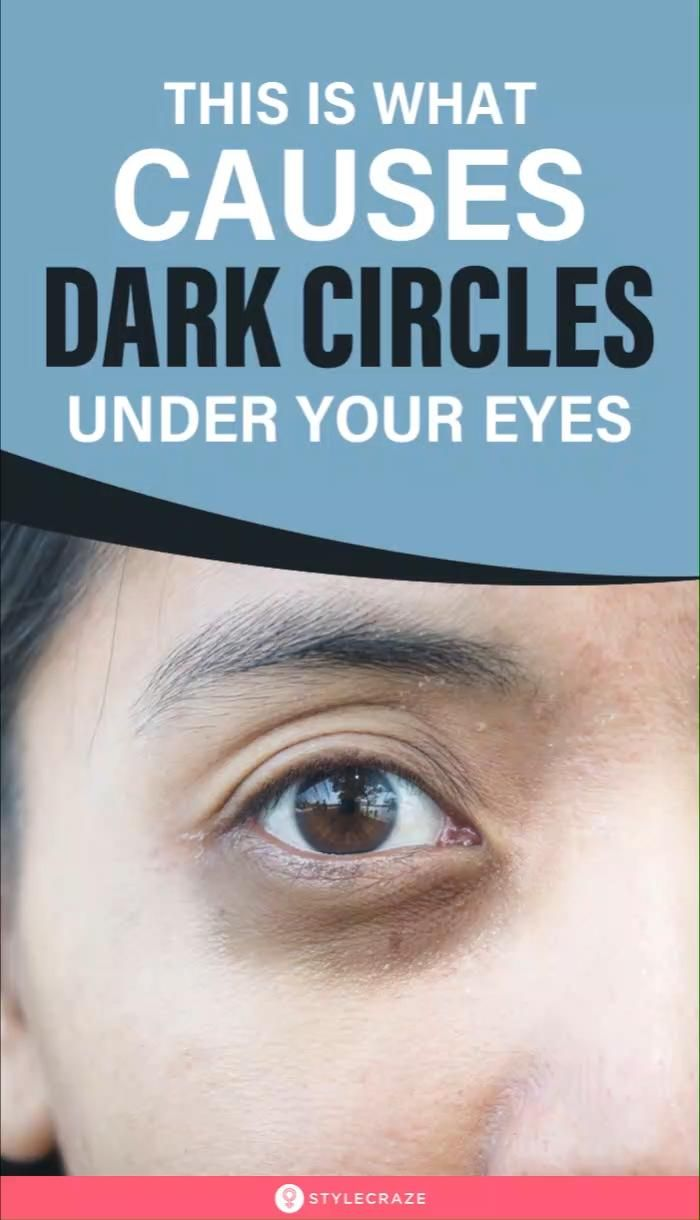 This Is What Causes Dark Circles Under Your Eyes