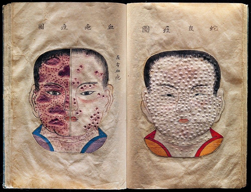 Variola Project : Hand-drawn and textured pages from a rare ...