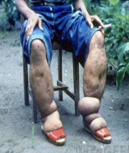 Learn All About Elephantiasis Its Treatment With The Help Of