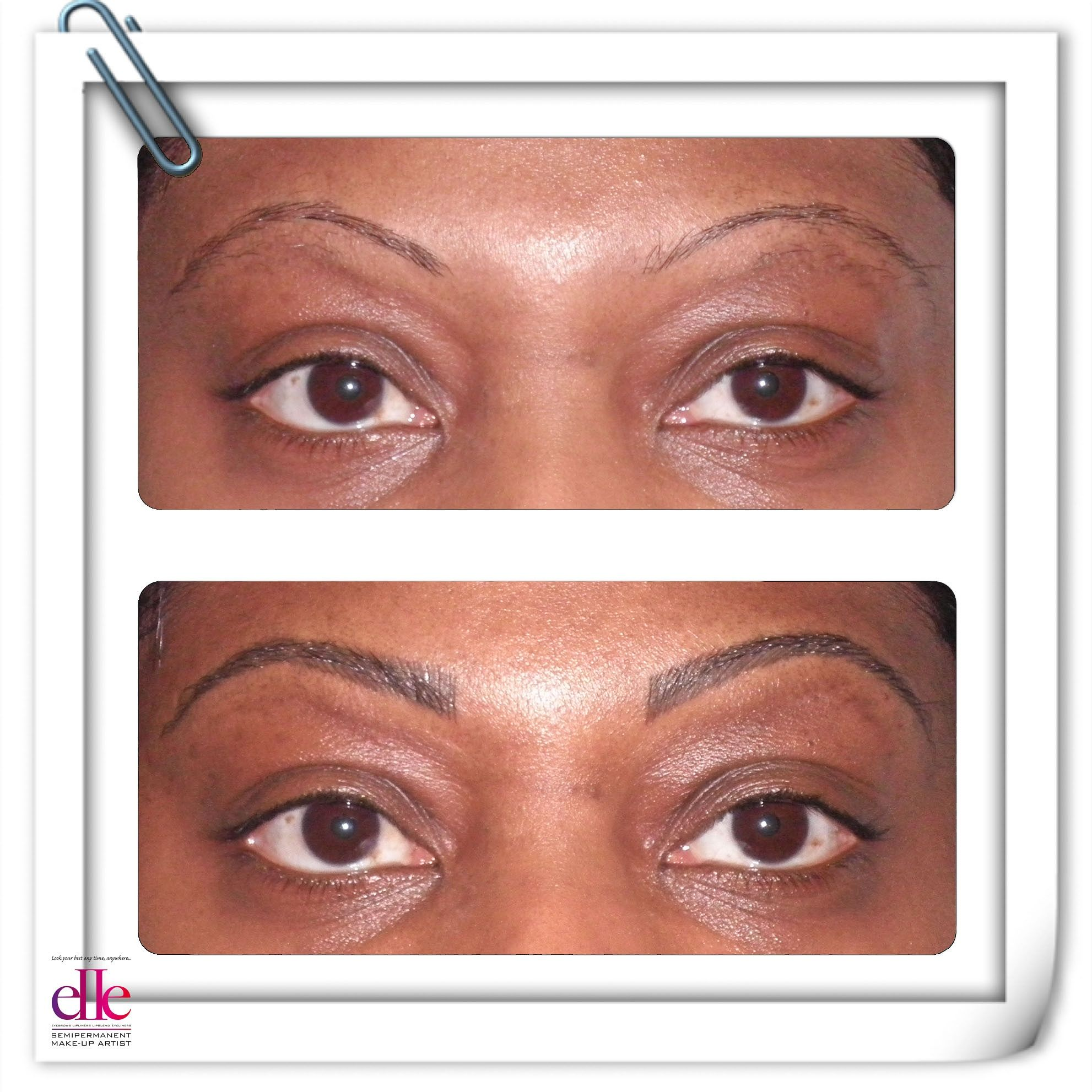 Before And After Semipermanent Makeup Procedure With Treacle Pigment