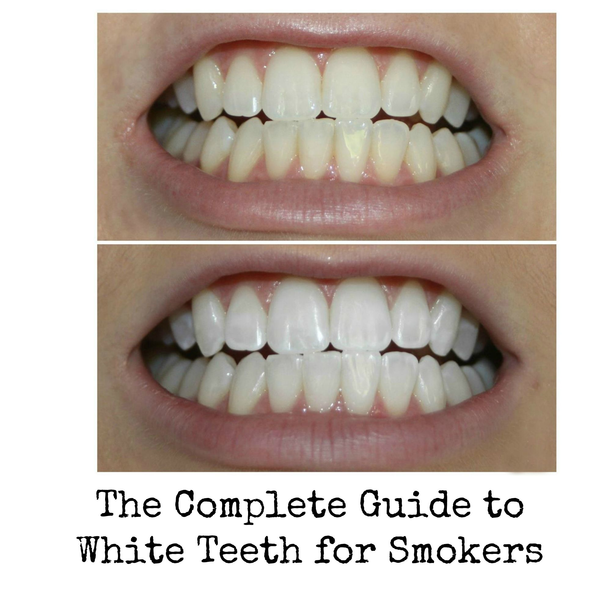 Does Teeth Whitening Hurt The Enamel An In Depth Look At Expert
