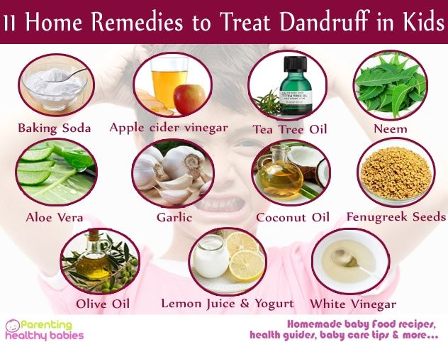 11 Home Remedies To Treat Dandruff In Kids Home Remedies For Dandruff Dandruff In Kids Dandruff Remedy