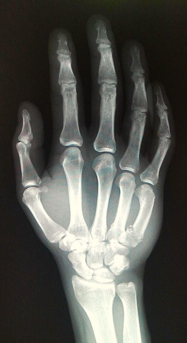 hand x-ray | Drawings - Hand & Foot | Pinterest | Anatomy, Human ...