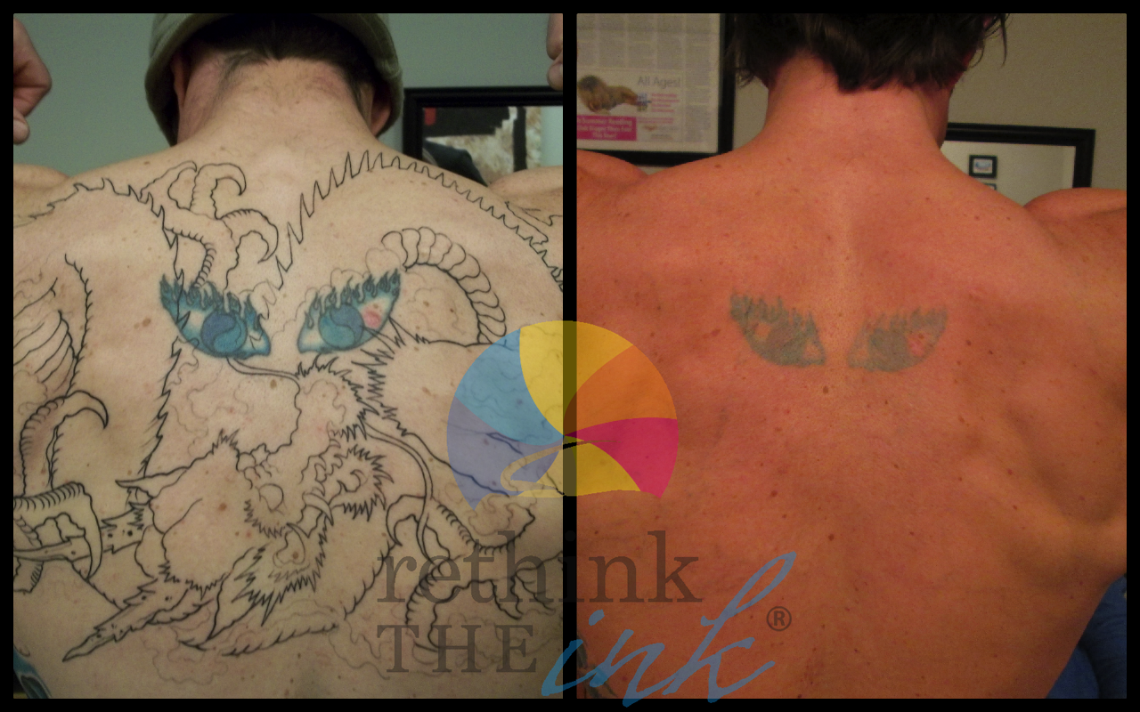 Tattoo Removal Before And After Pictures Rethink The Ink