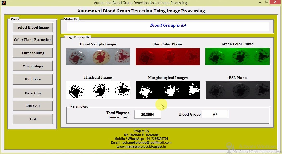 Blood Group Detection Using Image Processing Matlab Project