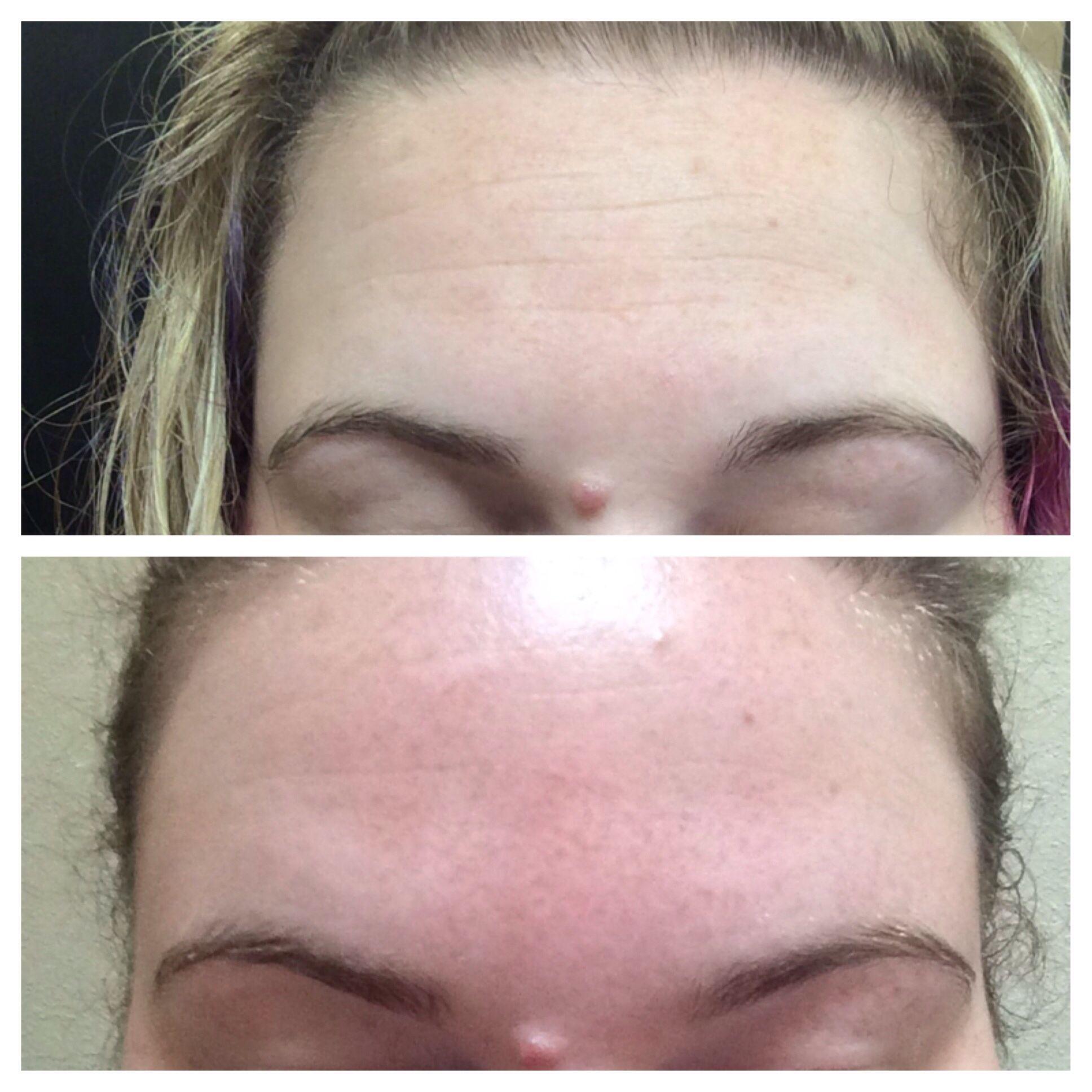 c4aba287b7c Forehead Wrinkles! NeriumAD! Carisafernandez.nerium.com 30 day money ...