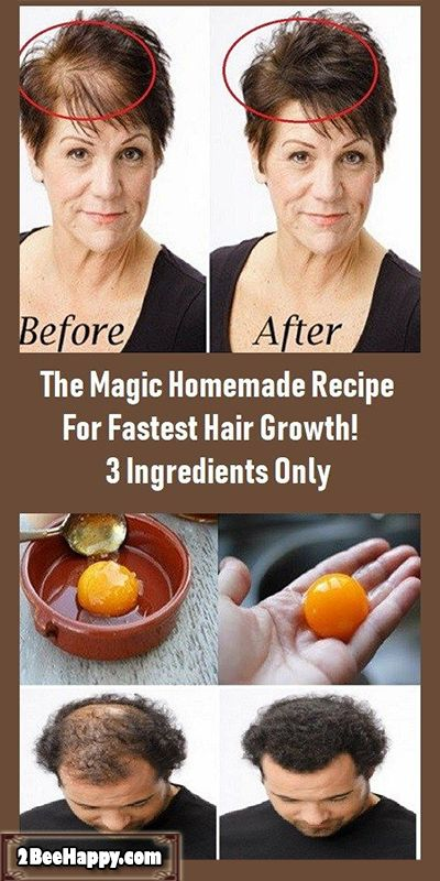 The Magic Homemade Recipe For Fastest Hair Growth 3 Ingredients Only!