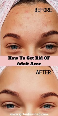 Getting Rid of Adult Acne: A Beginner's Guide