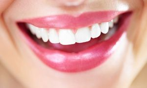 $2,799 for a Complete Invisalign Treatment at Smile :Dzine ($7,000 Value) #howtowhitenyourteeth