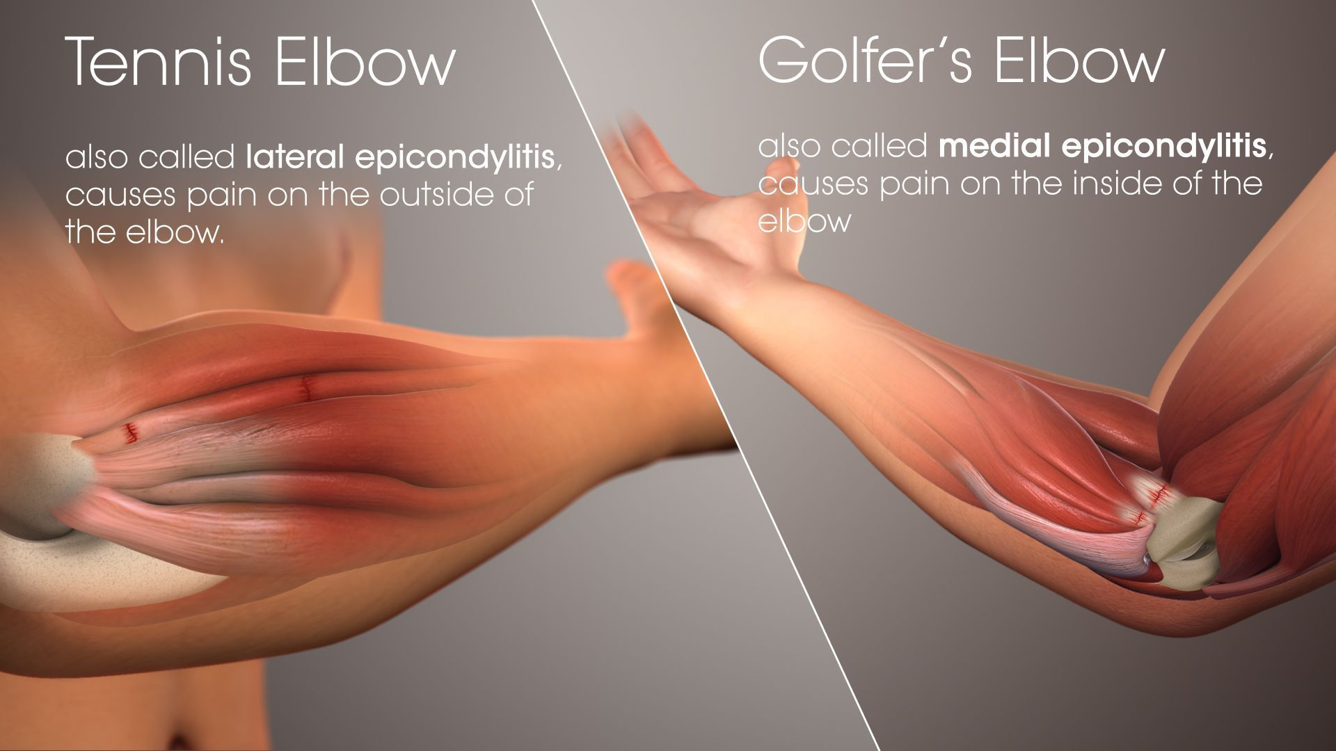 Golfer\'s elbow is a condition that causes #pain where the tendons of ...