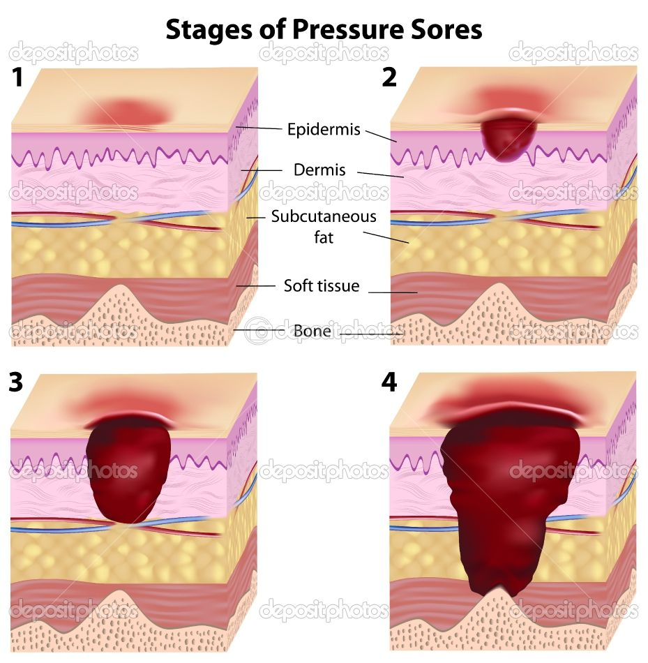 CARE OF AGING SKIN AND MUCOUS MEMBRANES Pressure ulcer