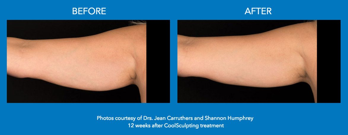 CoolSculpting Before and After Arm Treatments