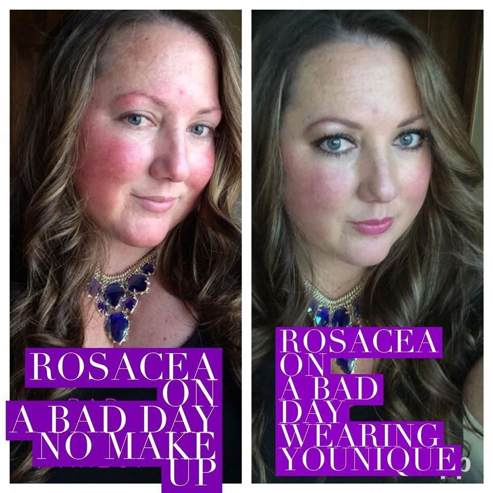 Rosacea on a bad day for me without make up and then using