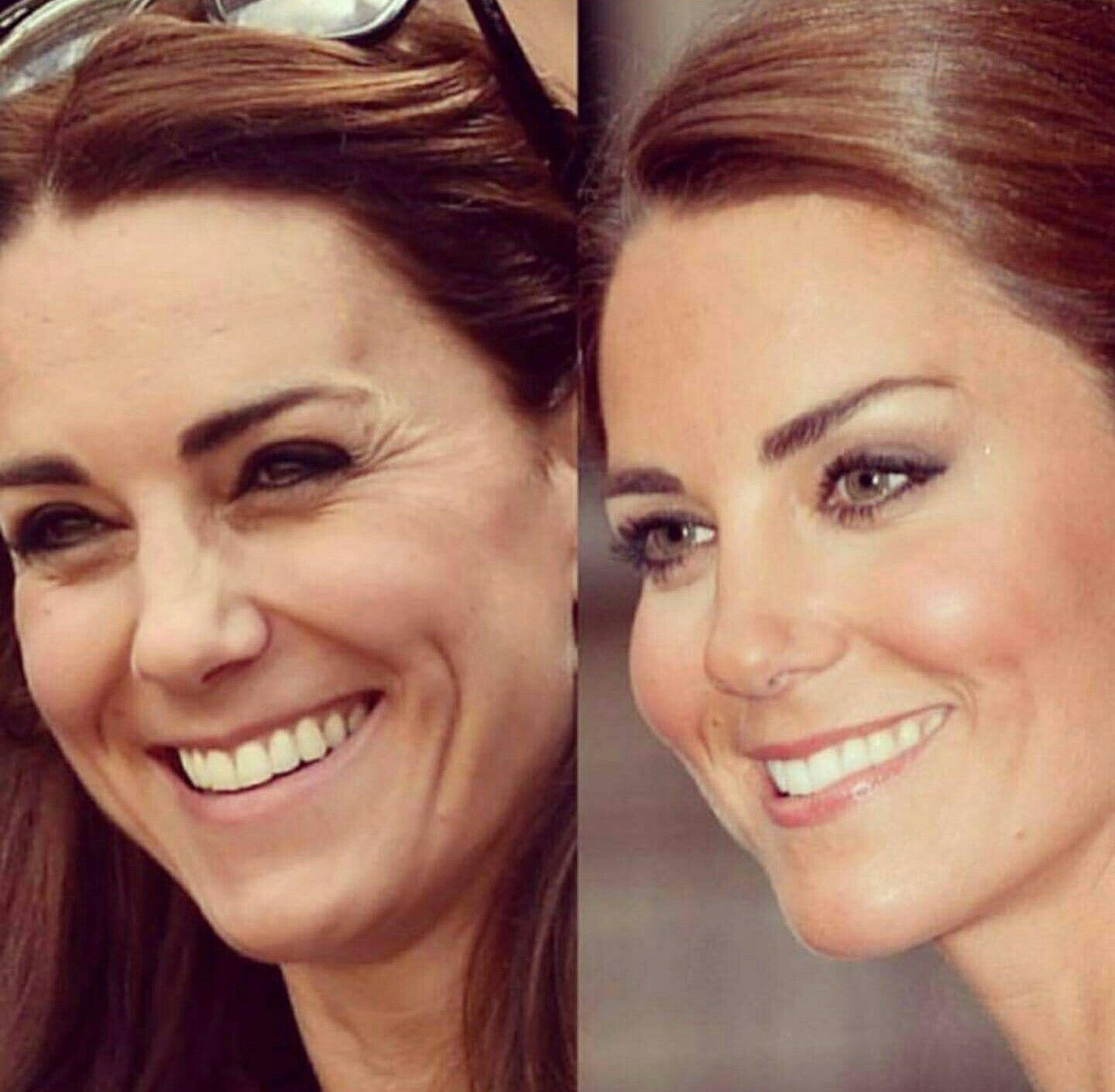 Kate hudsons double chin and swollen botox face