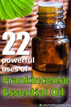 Frankincense essential oil is widely sold both online and in health food stores.It can be used for skin and wound care as well as to relieve inflammation and pain.