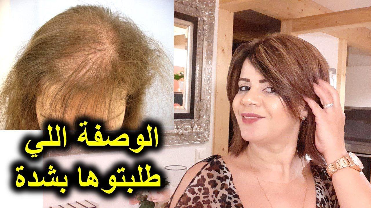 أقوى وصفة لتساقط الشعر والصلع وانبات الخلفة وكتافة للشعر Youtube