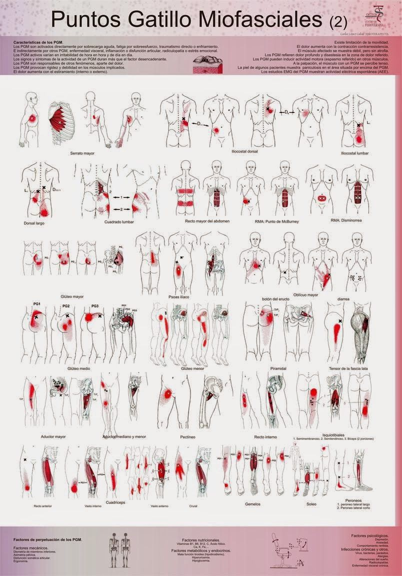 trigger points | Check out the pdf documents associated with this ...