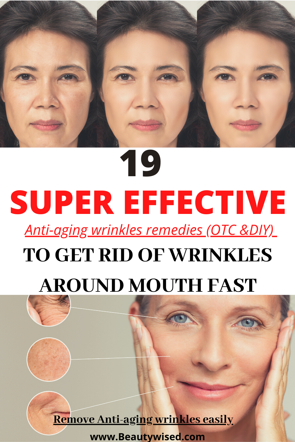 Looking For Some Proven Anti Aging Skin Care Tips To Get Rid Of Wrinkles Around Your Mouth Around Your Face To Reve In 2020 Facial Wrinkles Wrinkles Forehead Wrinkles