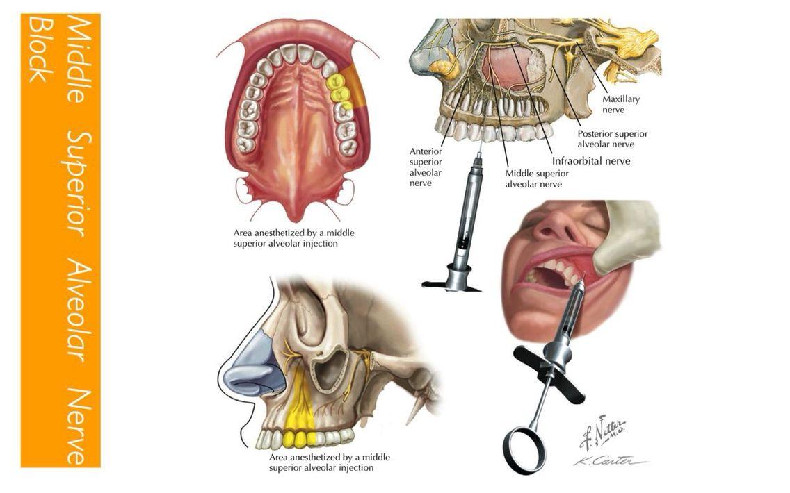 The middle superior alveolar nerve block | My Dental Passion | Pinterest