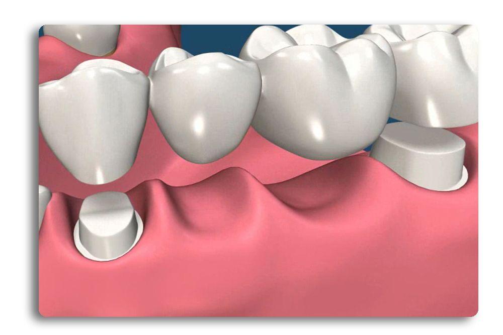Arcadia Porcelain Bridges Arcadia Dental Pinterest
