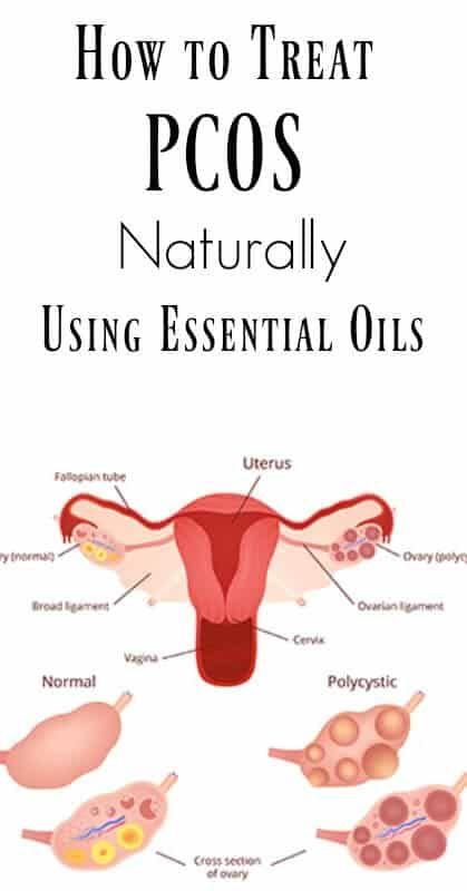 pcos en endometriose