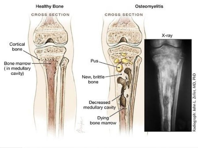 chronic osteomyelitis, xray | radiology | Pinterest ...