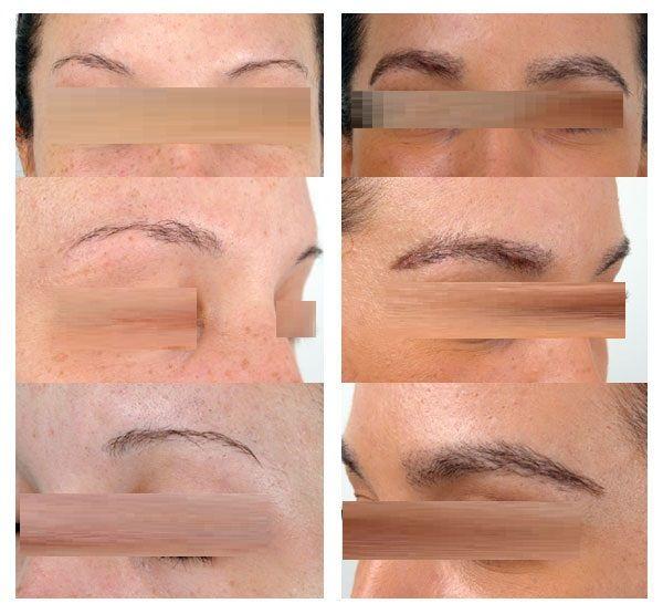 Weprovide Eyebrow Hair Transplant In Chandigarh Eyebrow Transplant