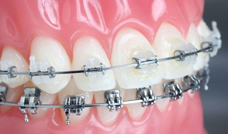 Aparelho Ortodontico Transparente Preco Aparelho Fixo Aparelho