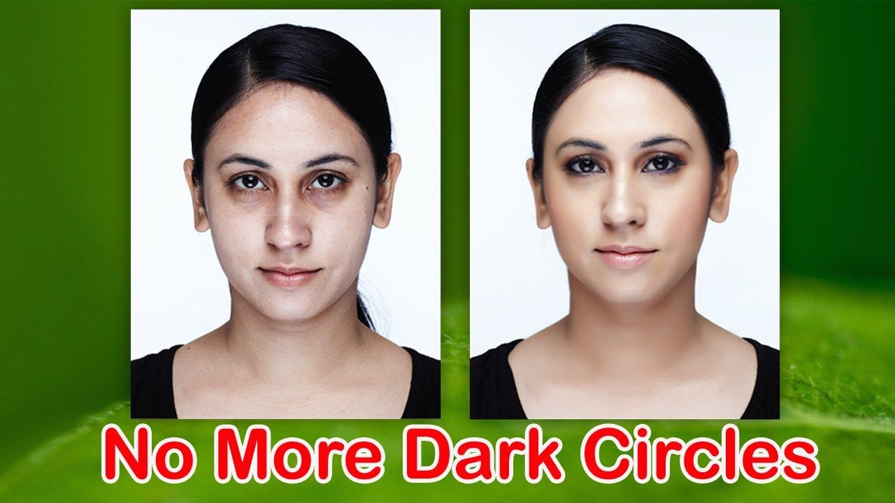 How to get rid of dark circles under eyes dark circles